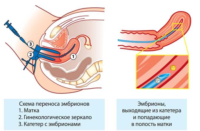 инсеминация при лечении бесплодия