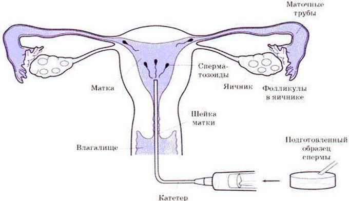 внутриматочная инсеминация спермой мужа