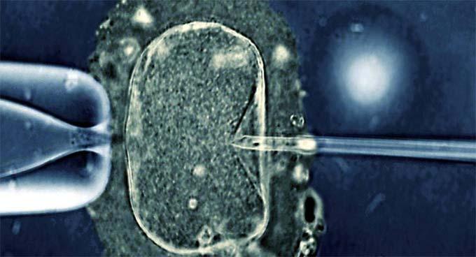 криптозооспермия