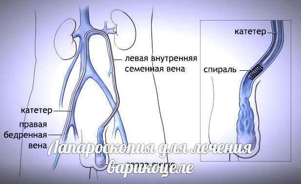операция варикоцеле лапароскопия