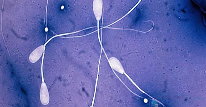 анализ некроспермии