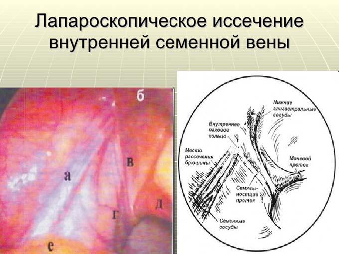 варикоцеле лапароскопия