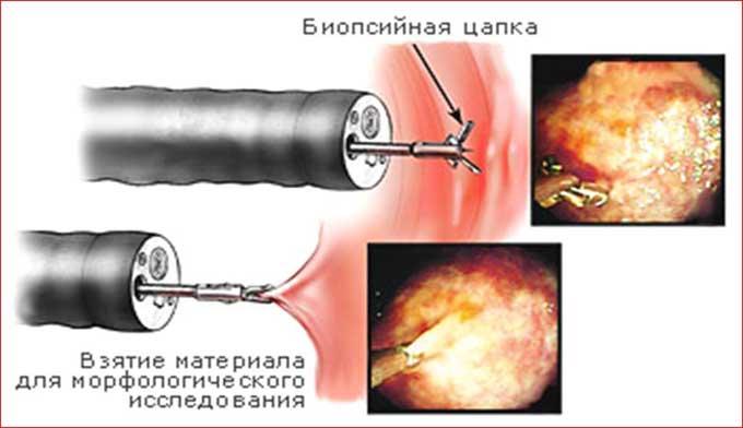 биопсийная цапка