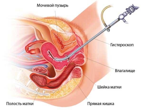 диагностическая гистероскопия перед эко