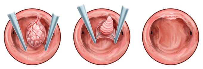 железистый полип эндометрия базального типа