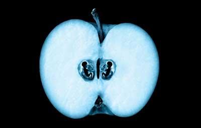 редукция эмбриона