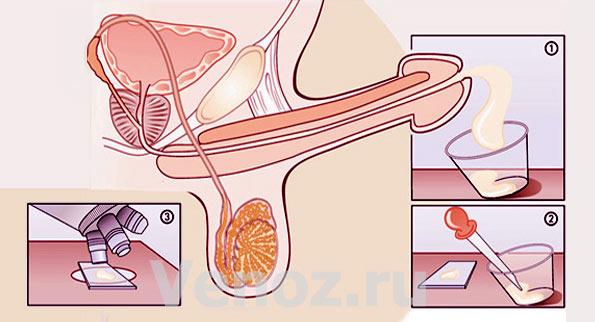 схема проведения анализа спермы