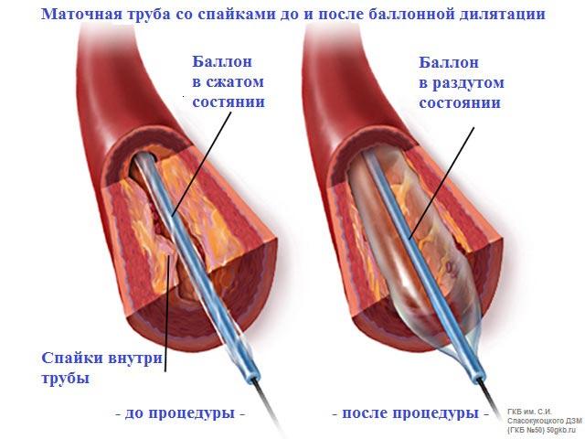 гинекология проверить проходимость маточных