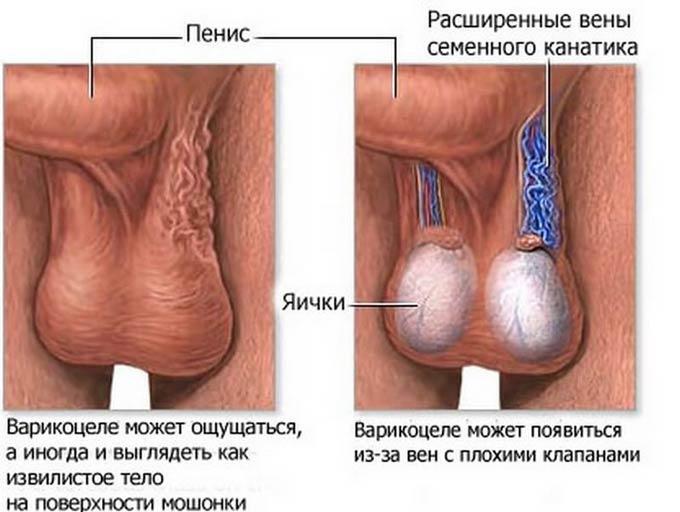 расширенные вены семенного канатика
