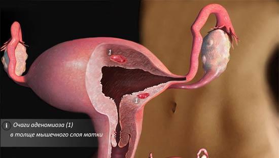 как лечить аденомиоз матки