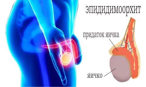 эпидидимоорхит