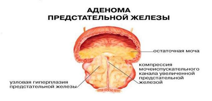 схема аденомы