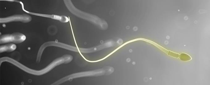 желтоватый цвет спермы