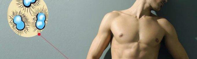 Половые инфекции у мужчин, их симптомы и лечение
