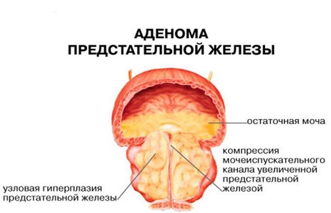 причины возникновения аденомы