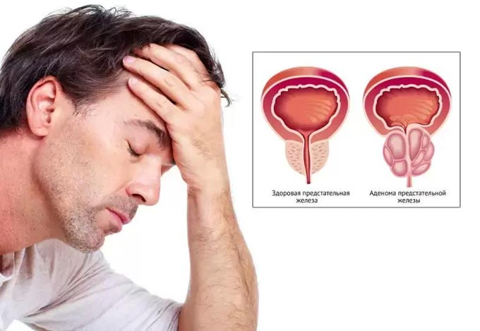 здоровая предстательная железа и аденома