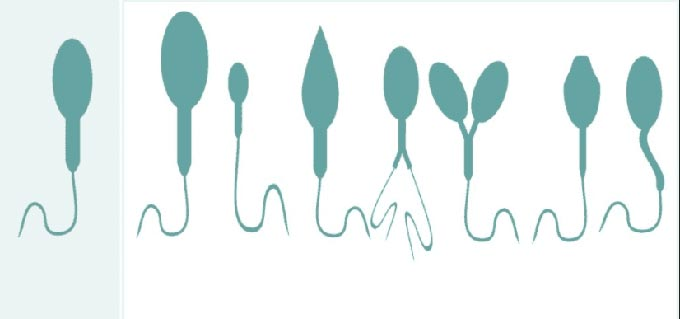 патология головки сперматозоида