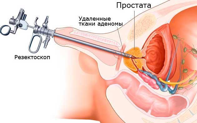 удаление ткани аденомы