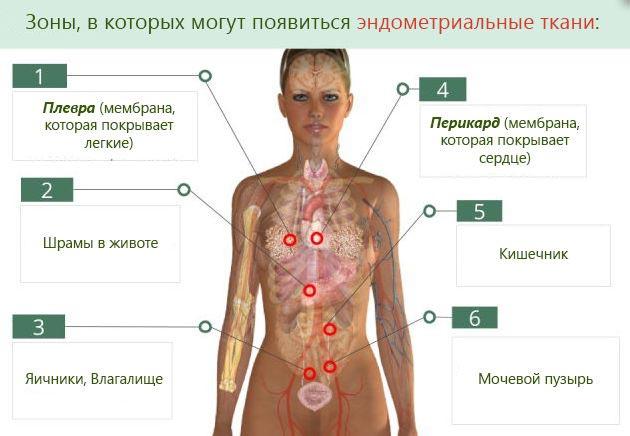 Лечение эндометриоза гормональными препаратами