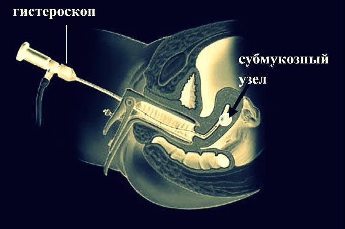 показания для гистероскопии