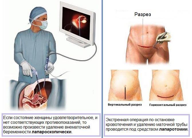 когда проводят лапароскопию при внематочной беременности