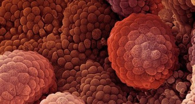 рак под микроскопом