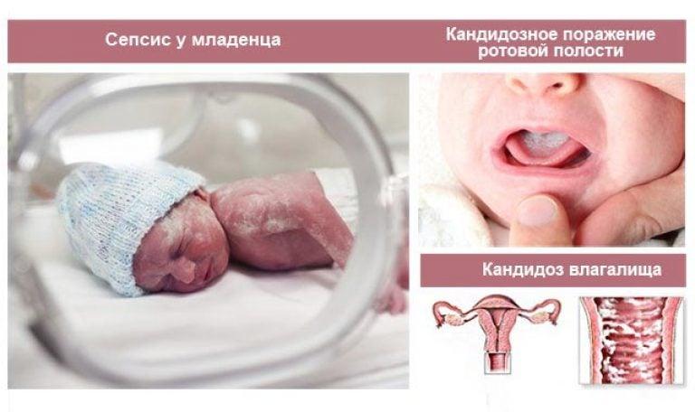 молочница есть ли она признаком беременности