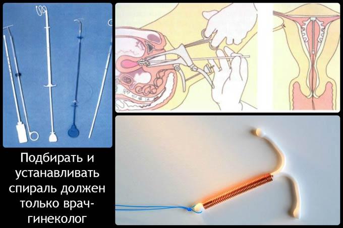 подбор внутриматочной спирали