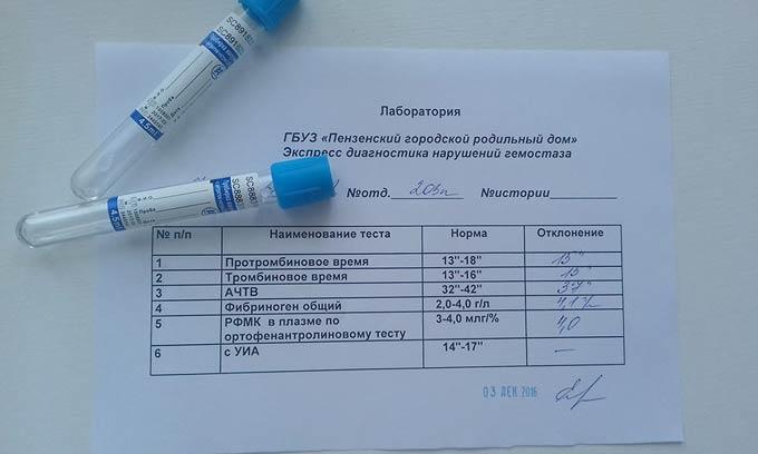 развернутая гемостазиограмма