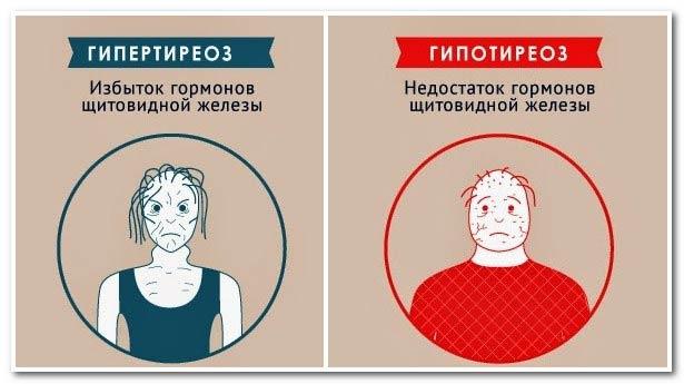 гормон щитовидной железы ттг