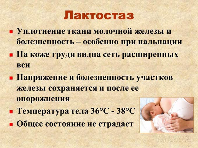 основные симптомы лактостаза