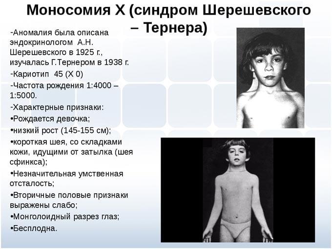 синдром Шерешевского-Тернера