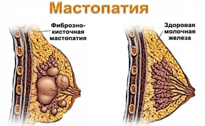 выраженная диффузная мастопатия