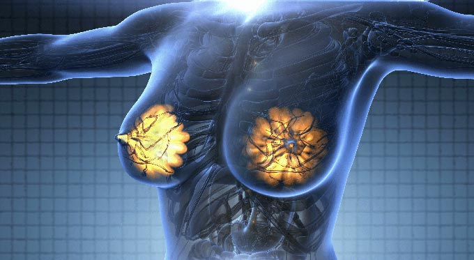 признаки фиброза молочной железы
