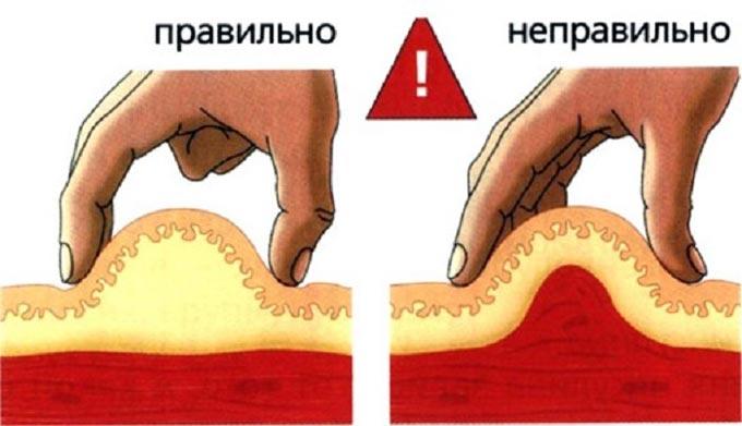 правильная подкожная инъекция
