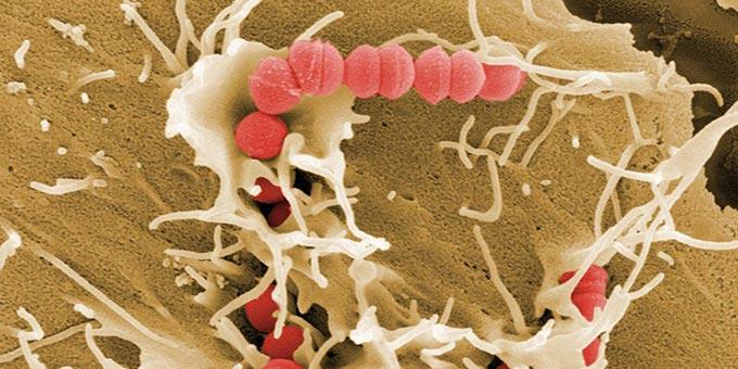 повреждение сперматозоидов