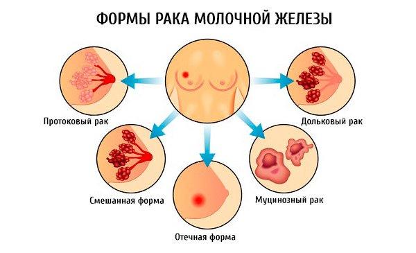 формы рака