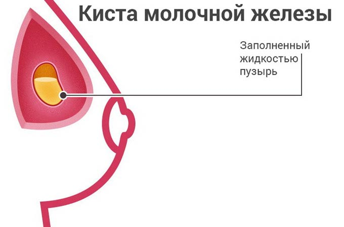 Множественные кисты молочных желез 2
