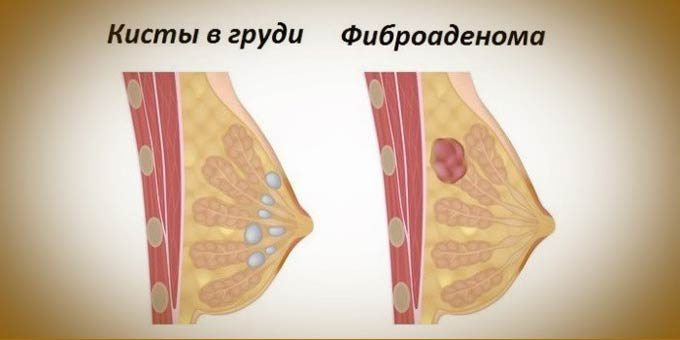 Множественные кисты молочных желез 4