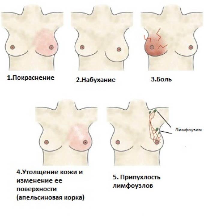 симптомы мастита