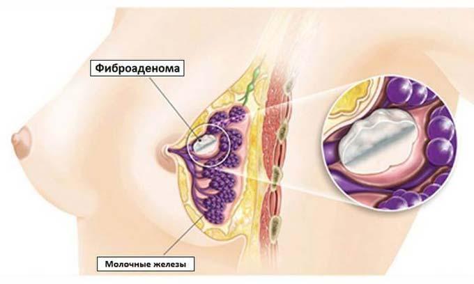 удаление фиброаденомы молочных желез