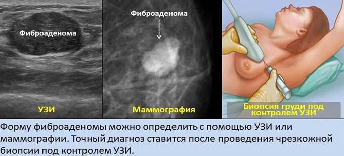 диагностика фиброаденомы