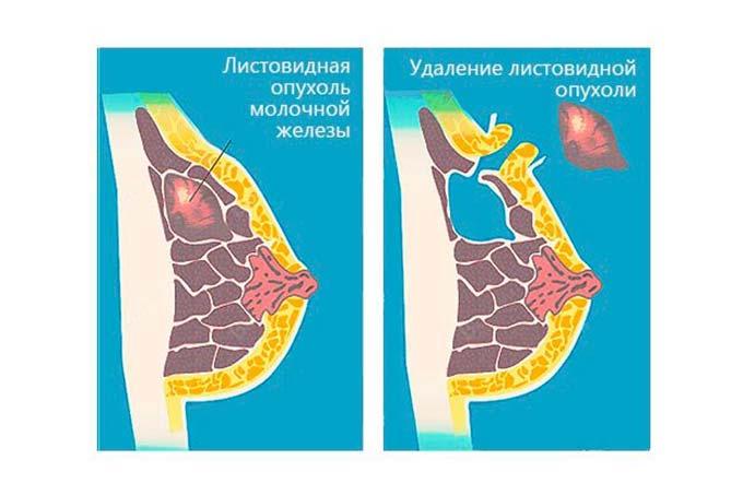 удаление листовидной опухоли