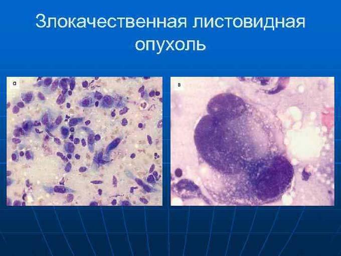снимок опухоли