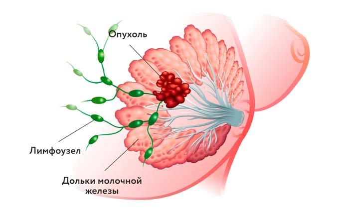 опухоль в груди