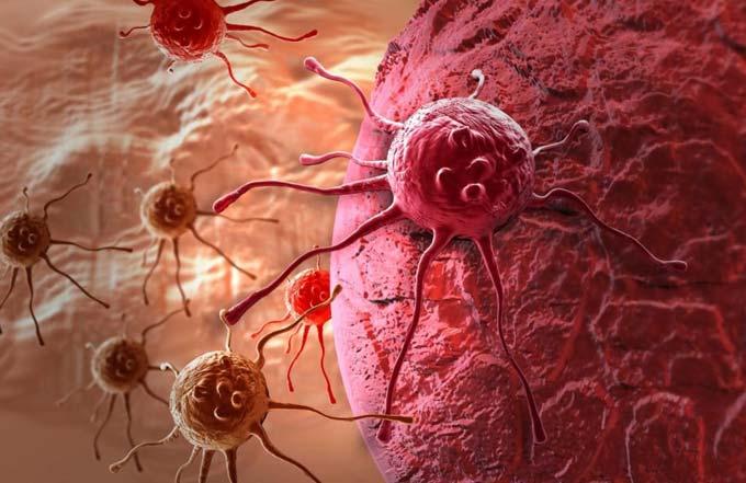 гормонозависимый рак