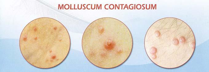 причины контагиозного моллюска