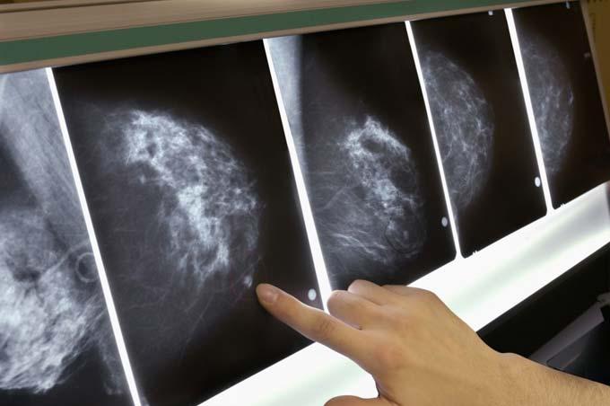 диагностика саркомы молочной железы