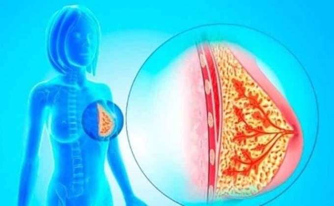 удаление внутрипротоковой папилломы молочной железы