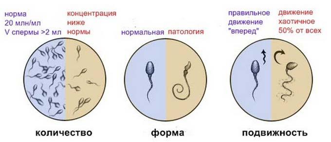 нормальные показатели спермограммы